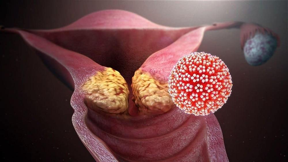 HPV DNA Genotyping & Cervical Cancer